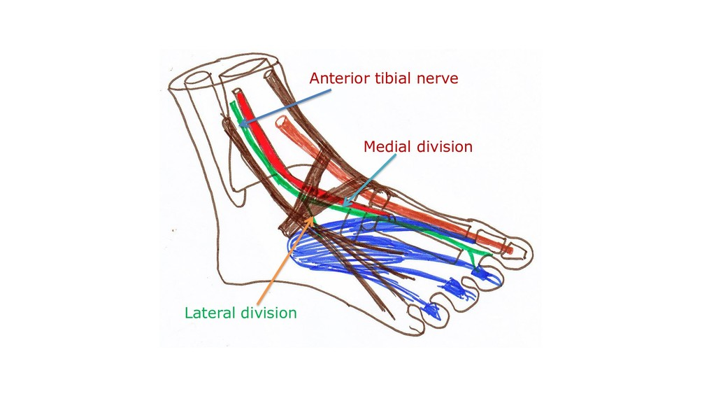 Medial division Anterior tibial nerve Lateral d...