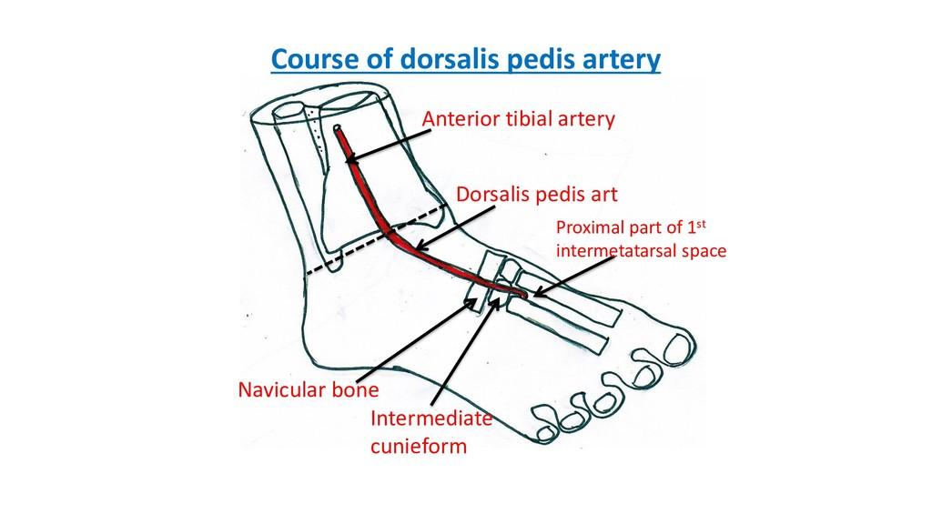 Anterior tibial artery Dorsalis pedis art Navic...