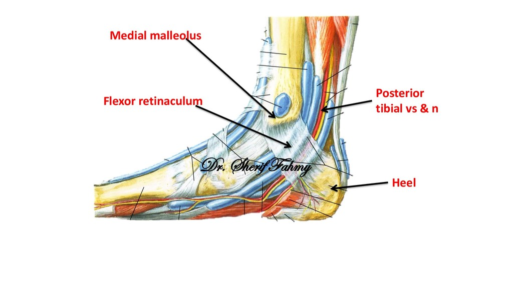 Flexor retinaculum Medial malleolus Heel Poster...