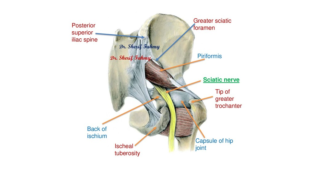 Piriformis Greater sciatic foramen Back of isch...