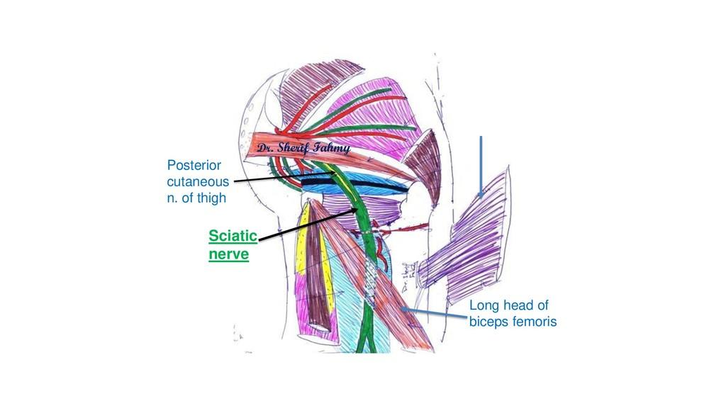 Dr. Sherif Fahmy Long head of biceps femoris Po...