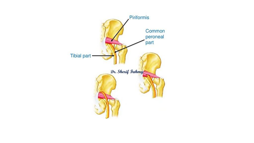 Tibial part Common peroneal part Piriformis Dr....