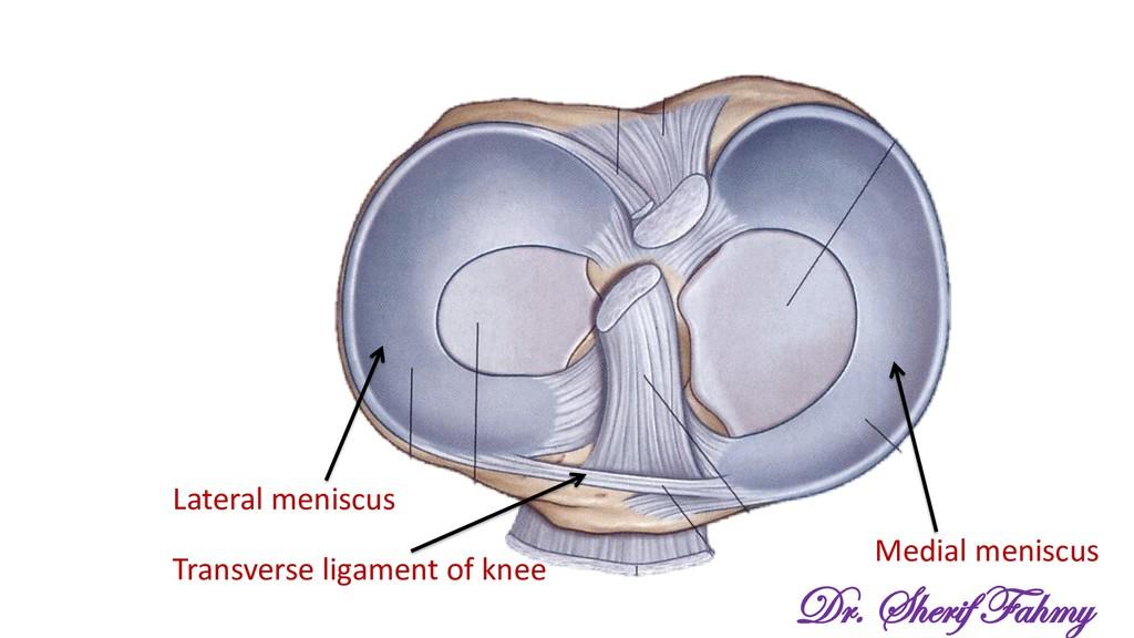 Lateral meniscus Medial meniscus Transverse lig...