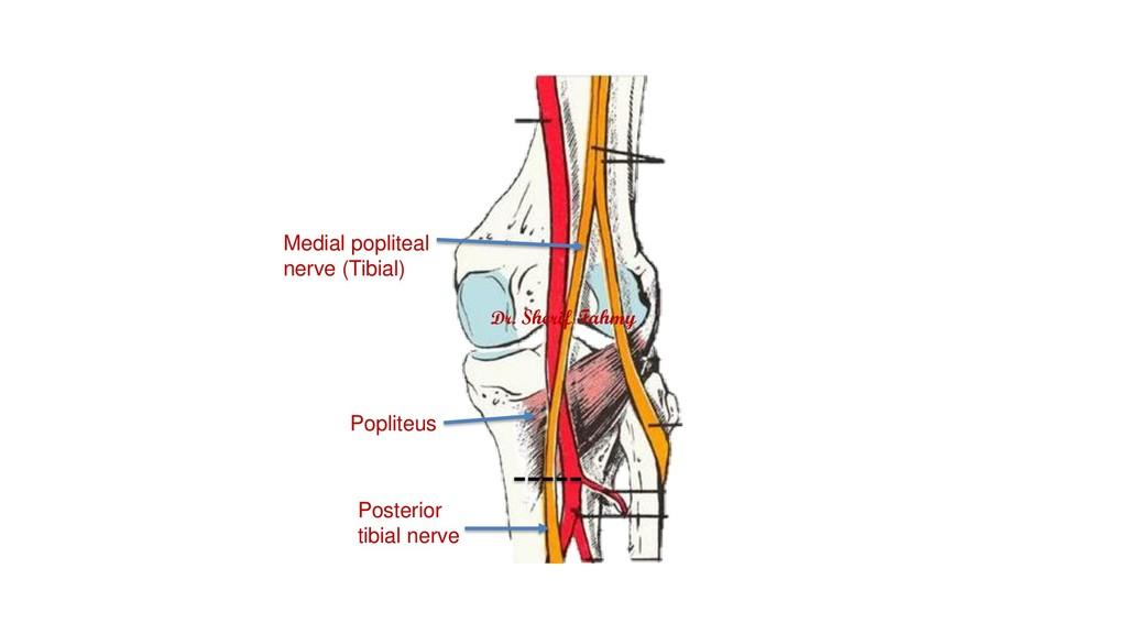 Medial popliteal nerve (Tibial) Popliteus Poste...