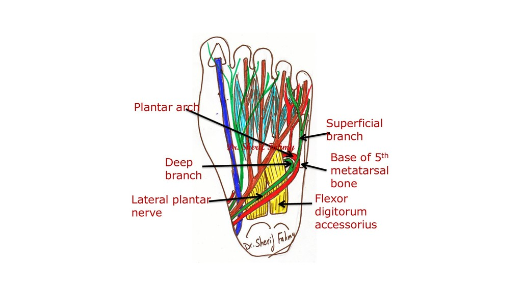 Flexor digitorum accessorius Lateral plantar ne...