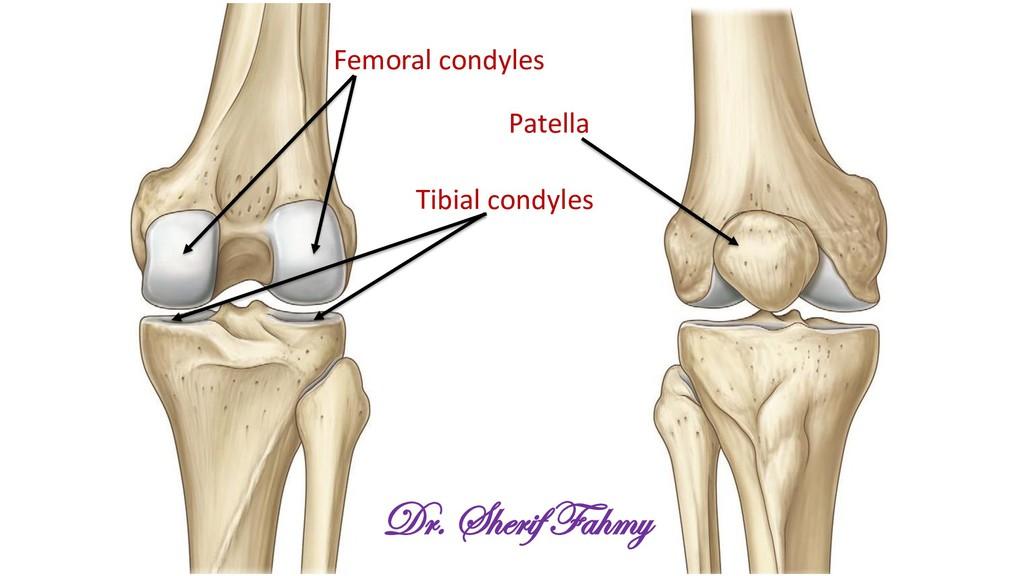 Patella Femoral condyles Tibial condyles Dr. Sh...