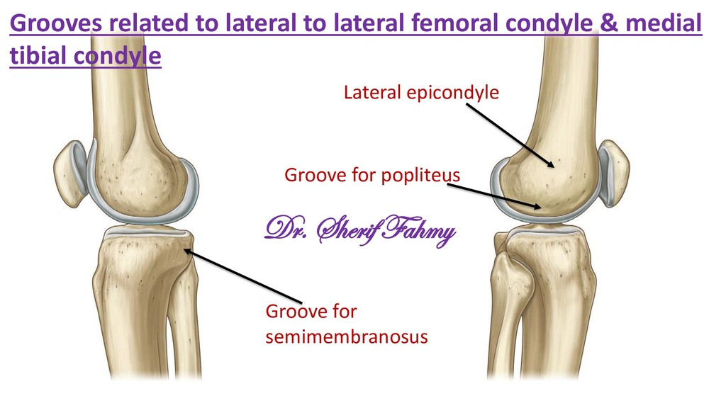 Lateral epicondyle Groove for popliteus Groove ...