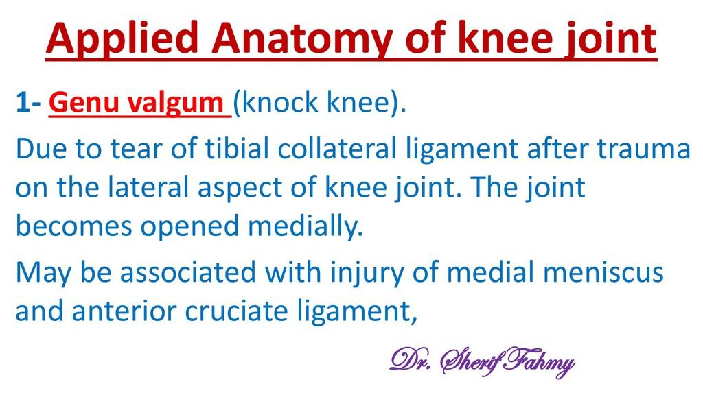Applied Anatomy of knee joint 1- Genu valgum (k...