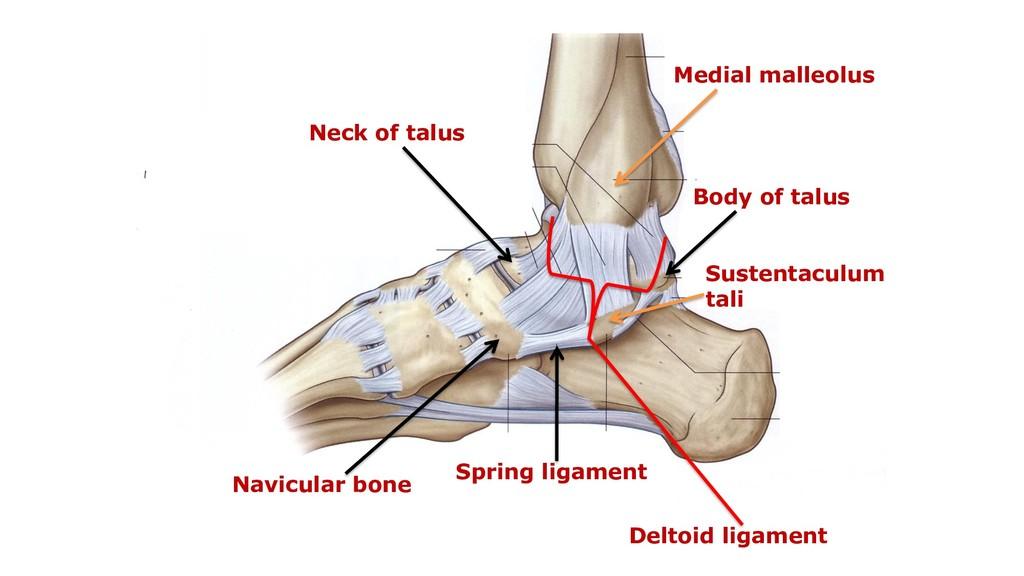 Neck of talus Navicular bone Spring ligament De...