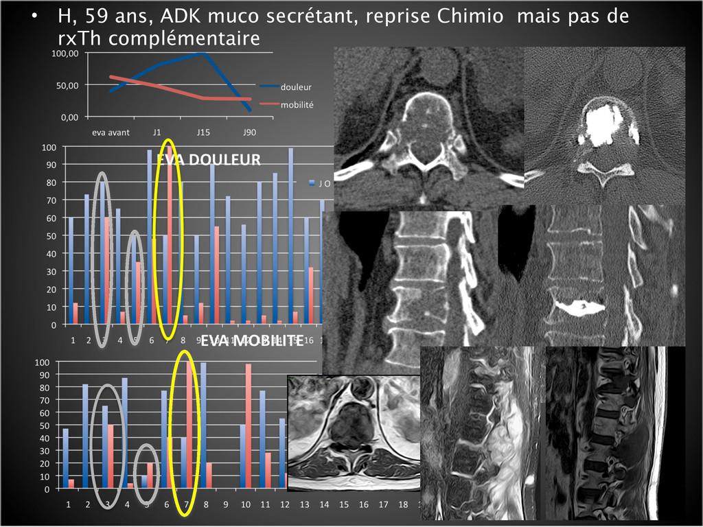 • H, 59 ans, ADK muco secrétant, reprise Chimio...