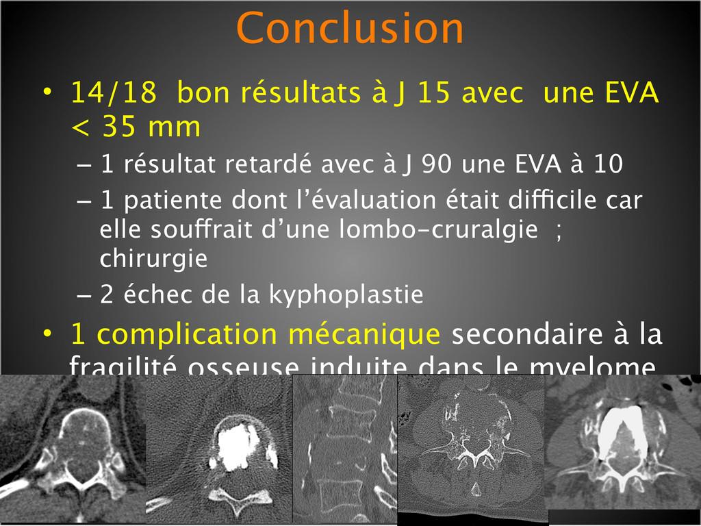 Conclusion • 14/18 bon résultats à J 15 avec un...