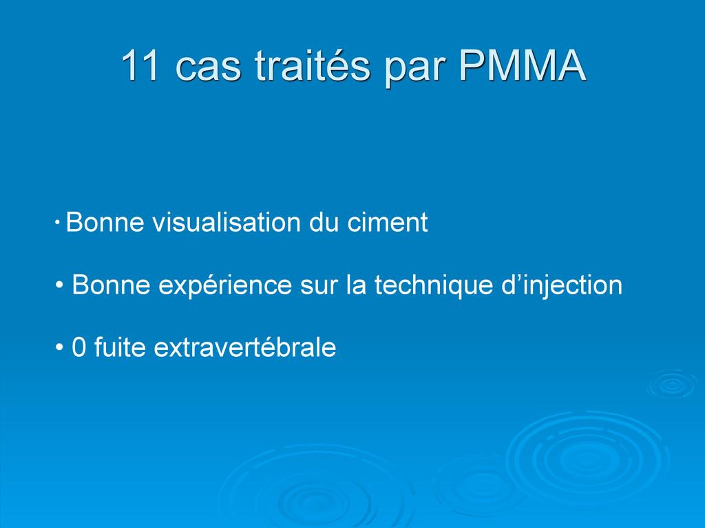 11 cas traités par PMMA • Bonne visualisation d...
