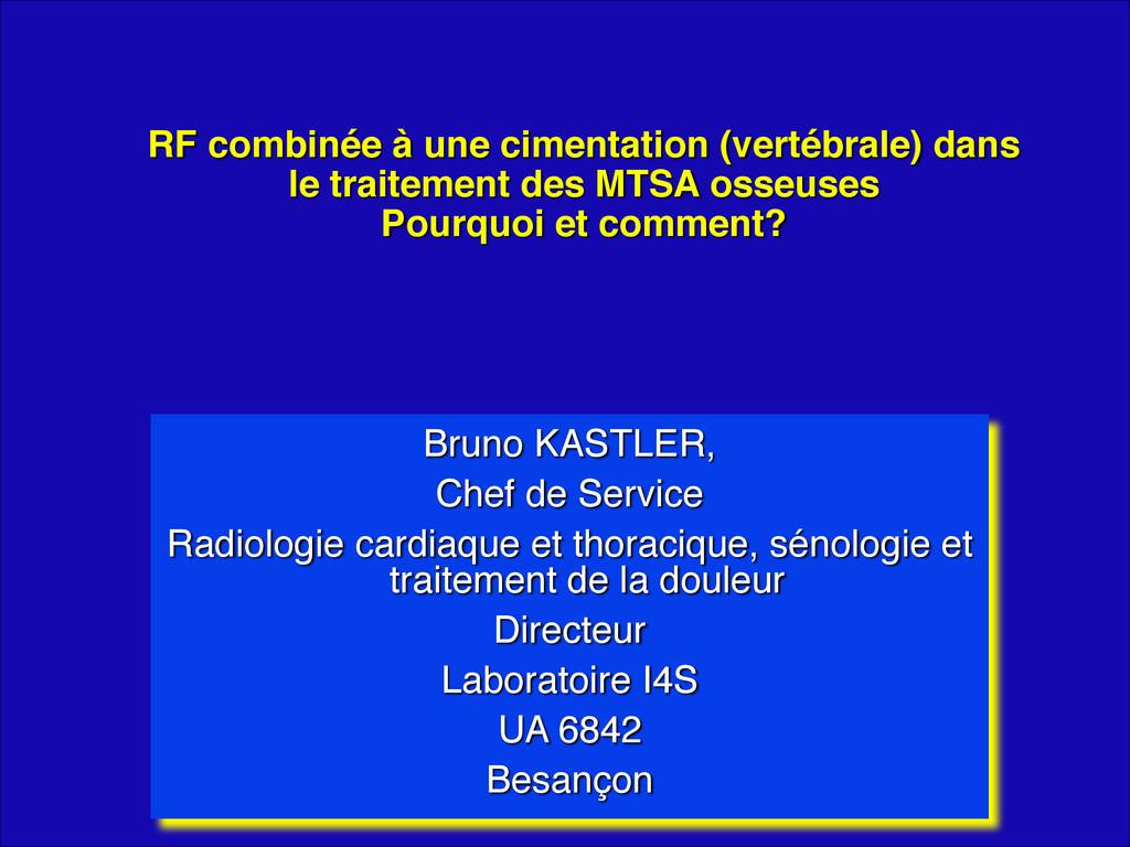 RF combinée à une cimentation (vertébrale) dans...
