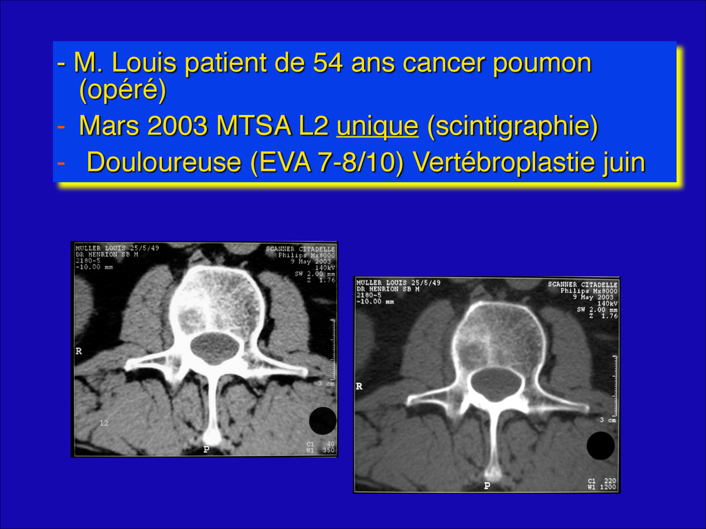 - M. Louis patient de 54 ans cancer poumon (opé...