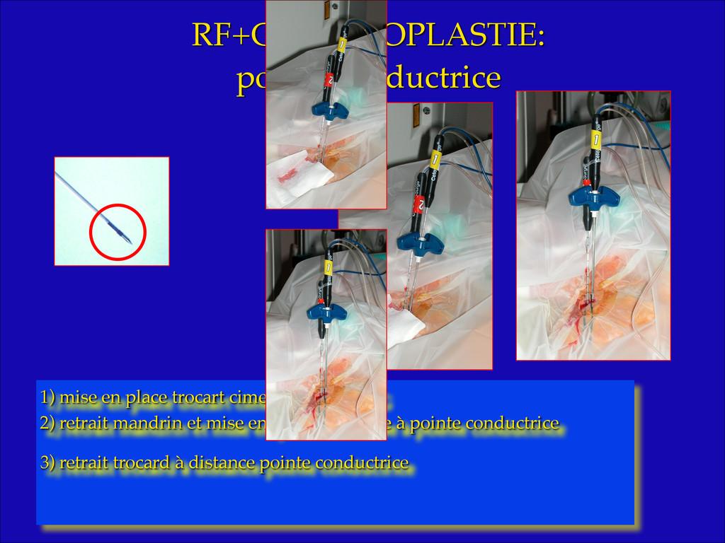 RF+CIMENTOPLASTIE: ! pointe conductrice! 1) mis...