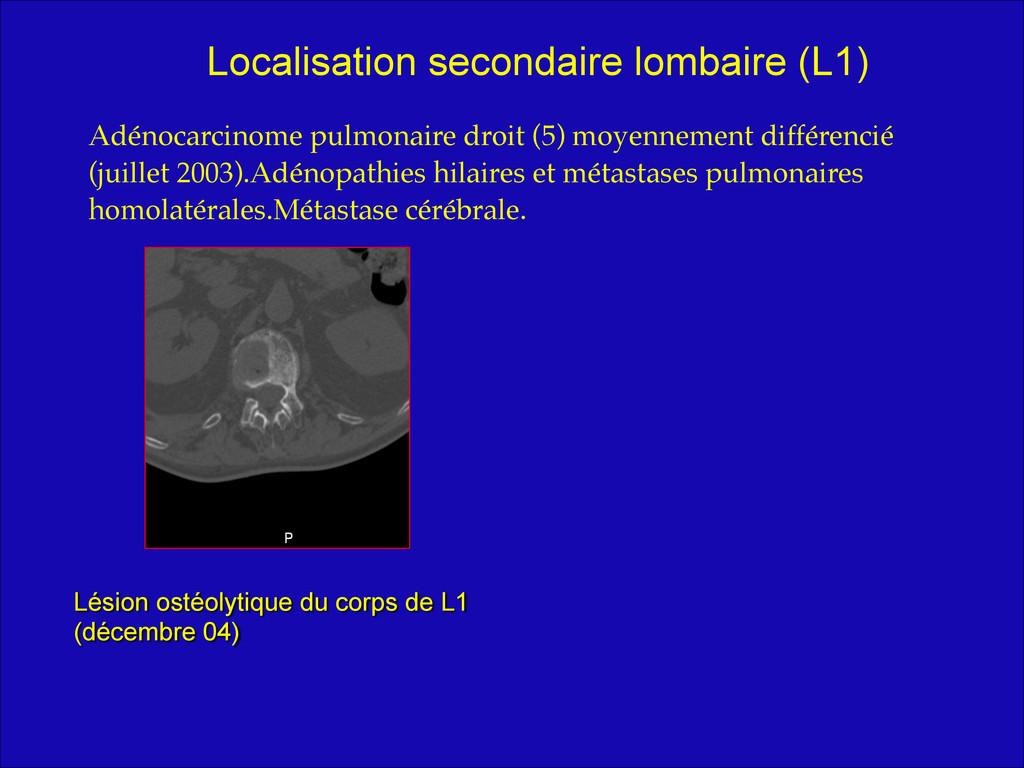 ! Adénocarcinome pulmonaire droit (5) moyenneme...