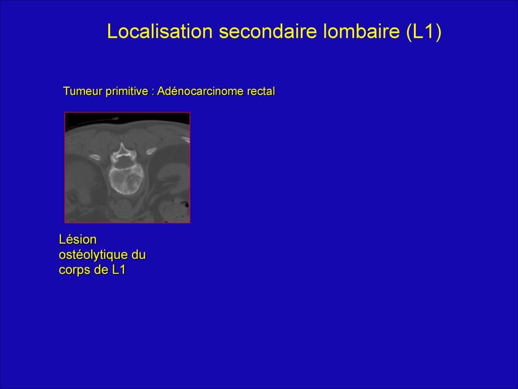 """Tumeur primitive : Adénocarcinome rectal """" Lési..."""
