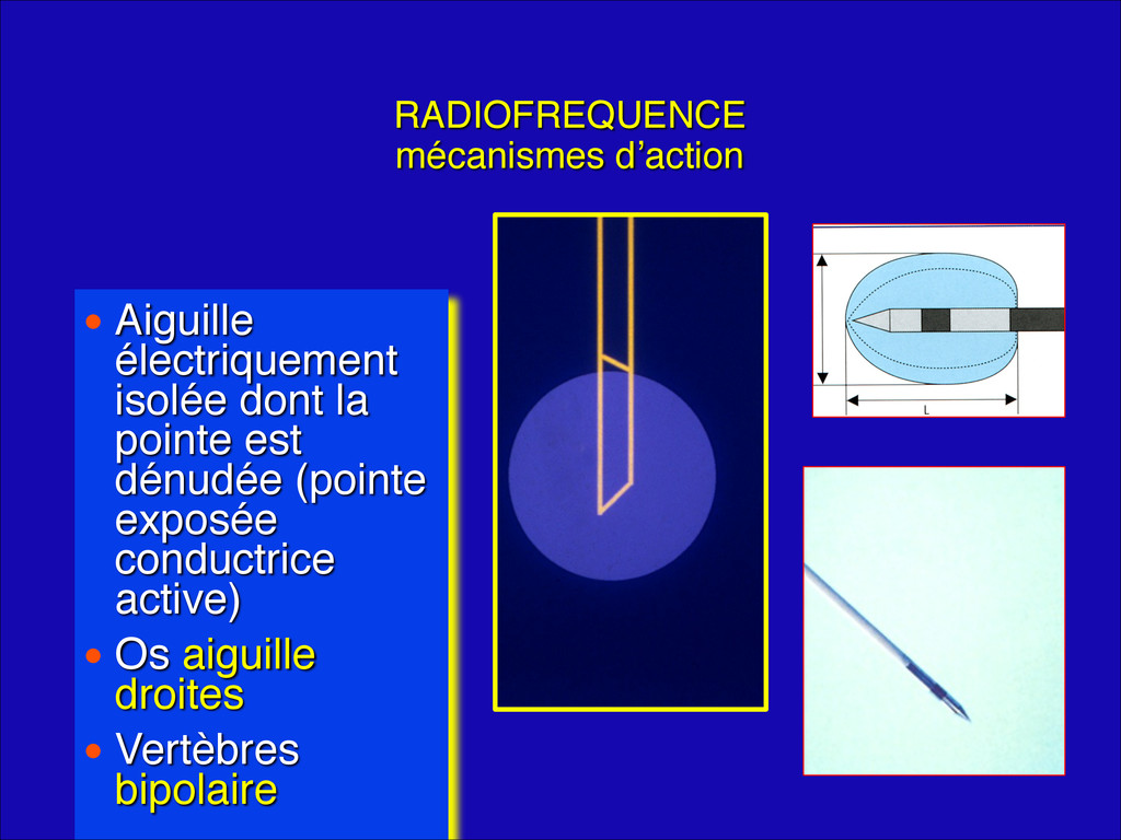 RADIOFREQUENCE mécanismes d'action • Aiguille...