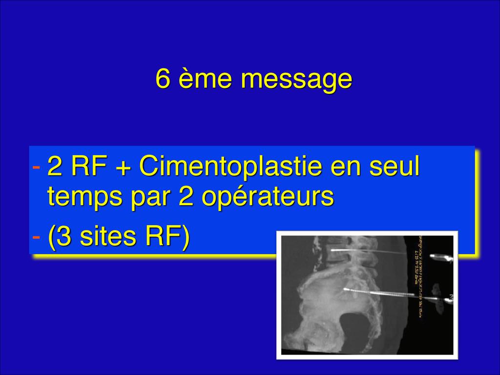 6 ème message - 2 RF + Cimentoplastie en seul t...