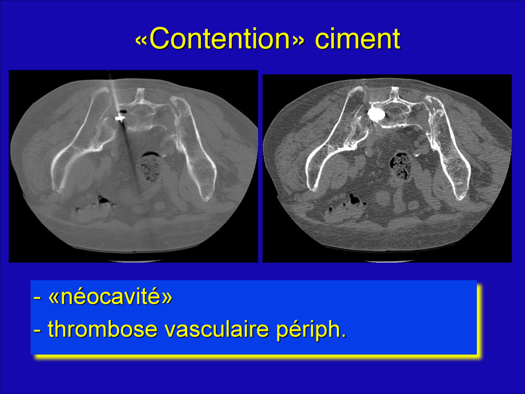 «Contention» ciment - «néocavité» - thrombose v...