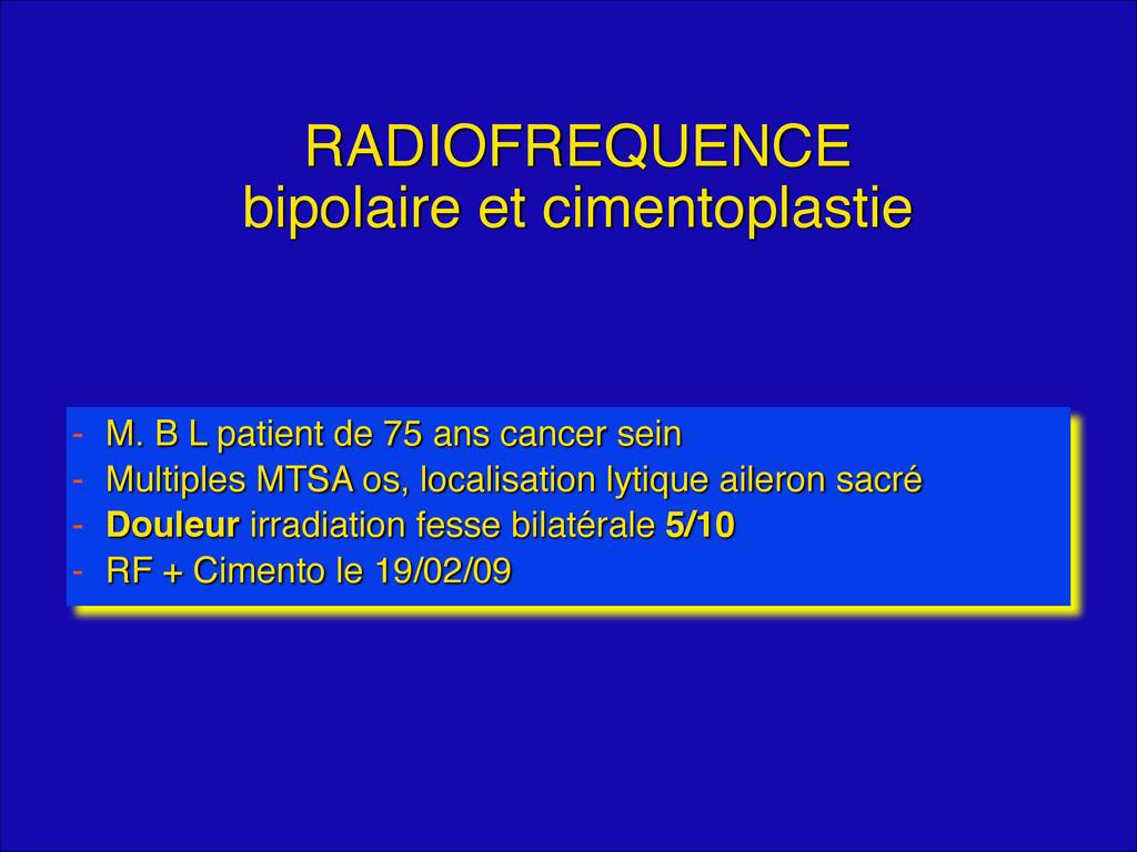 RADIOFREQUENCE bipolaire et cimentoplastie - M...