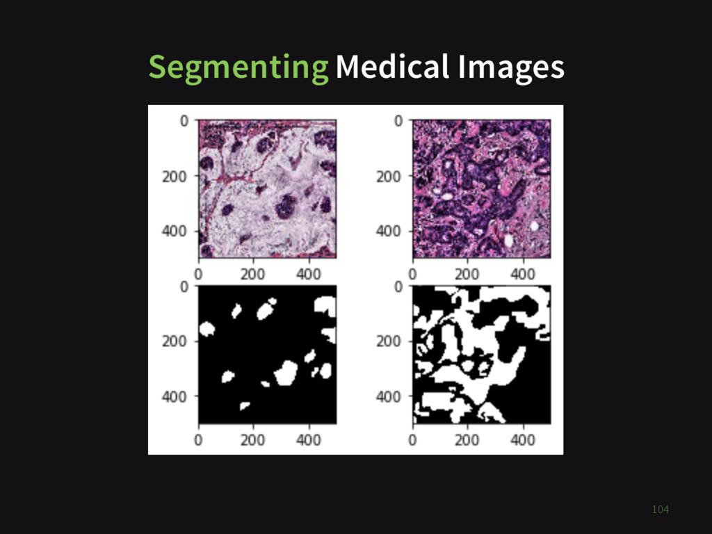 Segmenting Medical Images TODO 104