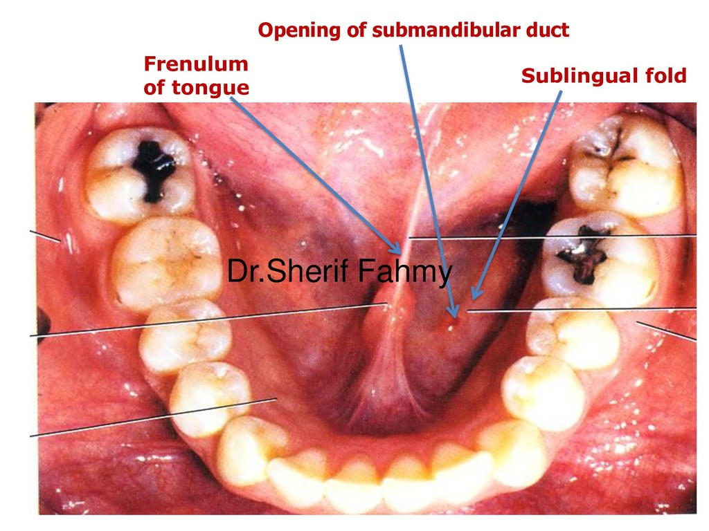 Frenulum of tongue Sublingual fold Opening of s...
