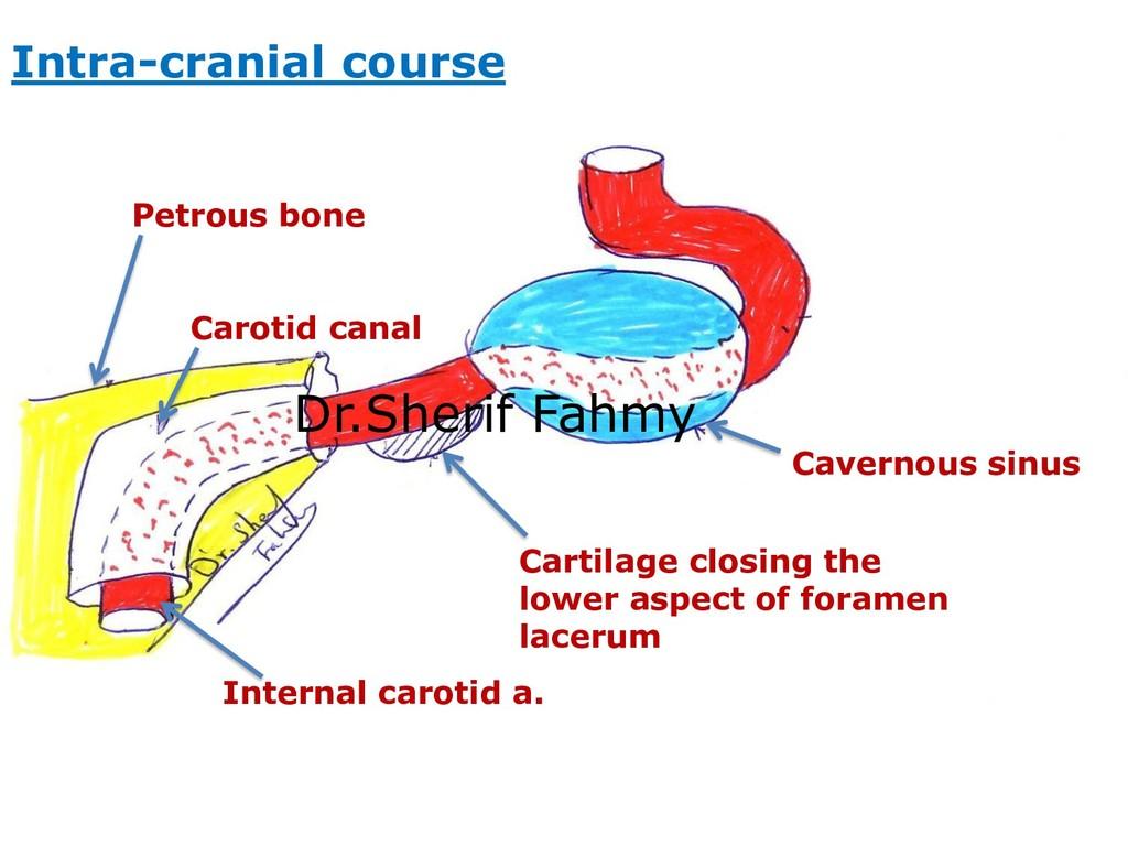 Petrous bone Carotid canal Internal carotid a. ...