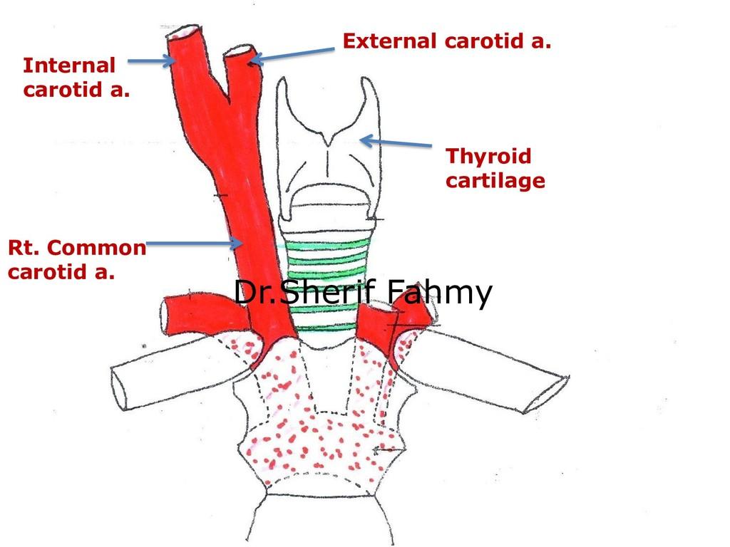 Rt. Common carotid a. Thyroid cartilage Externa...