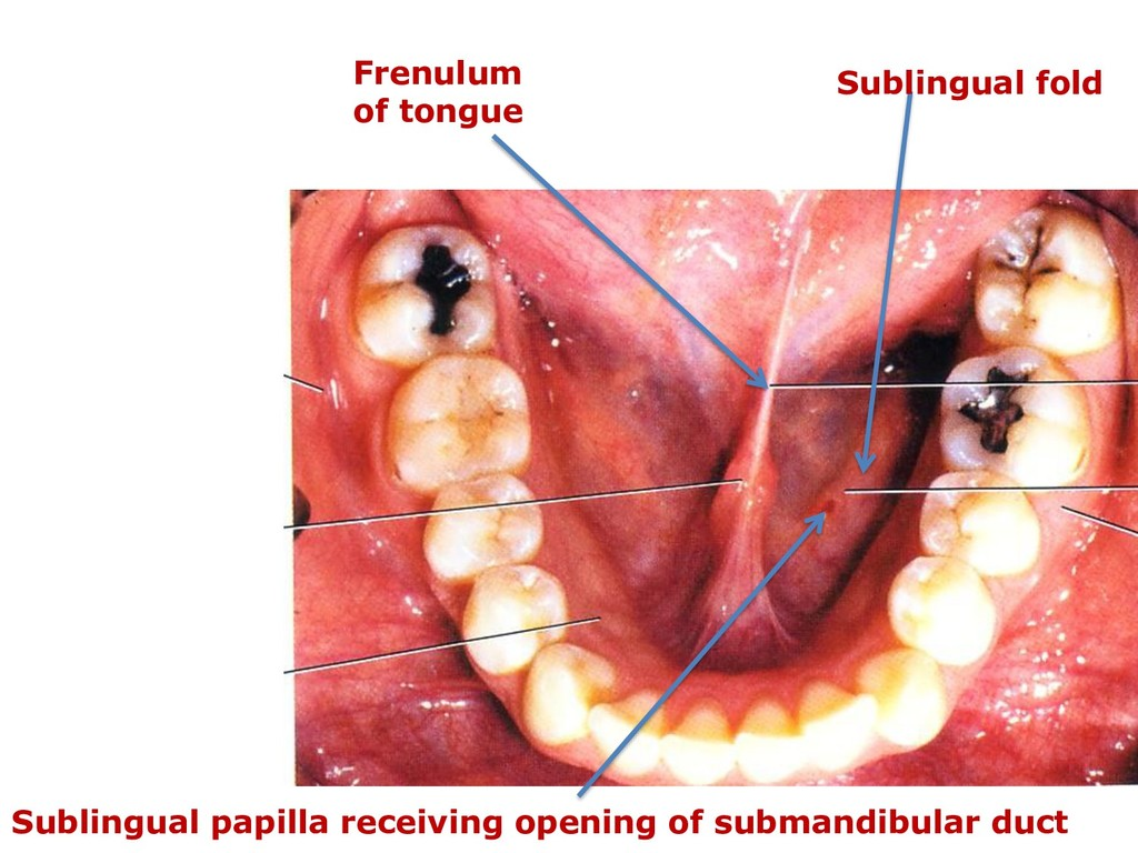 Frenulum of tongue Sublingual fold Sublingual p...