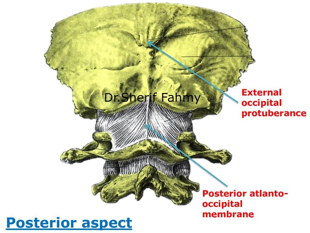 External occipital protuberance Posterior atlan...