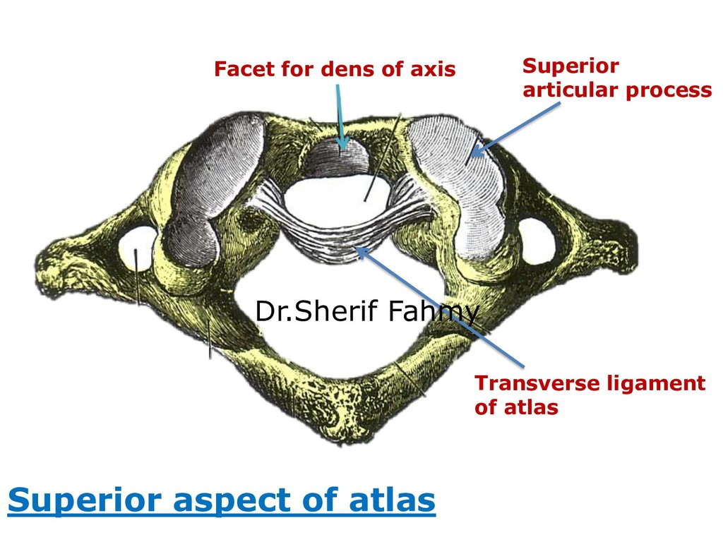 Superior aspect of atlas Facet for dens of axis...