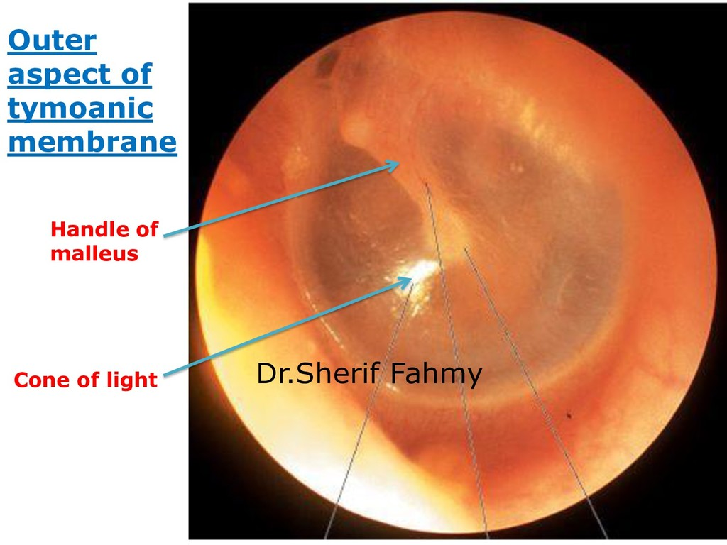Outer aspect of tymoanic membrane Handle of mal...