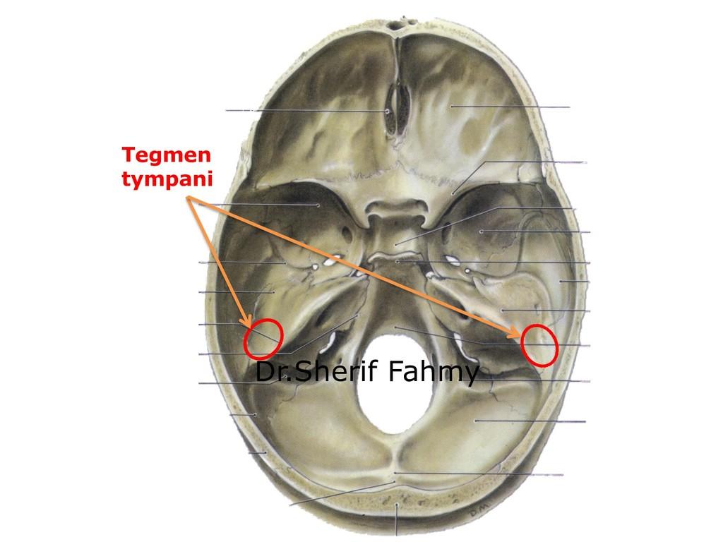Tegmen tympani Dr.Sherif Fahmy