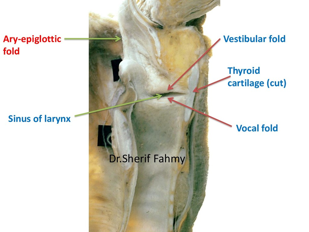Ary-epiglottic fold Vestibular fold Vocal fold ...